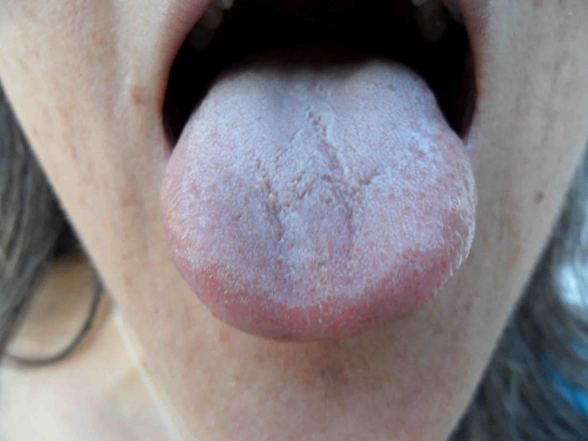 tongue | Wendy Stedeford's Acupuncture and Traditional ...: http://wstedeford.wordpress.com/category/tongue